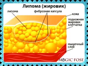 строение липомы (жировика)